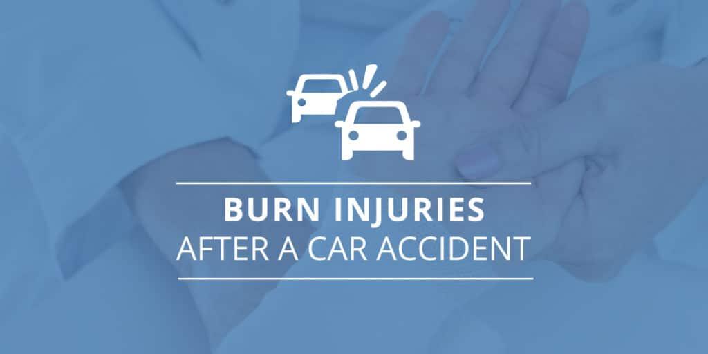 Burn Injuries Car Accident